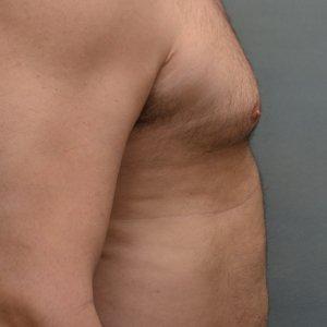 manhattan gynecomastia surgery before 4